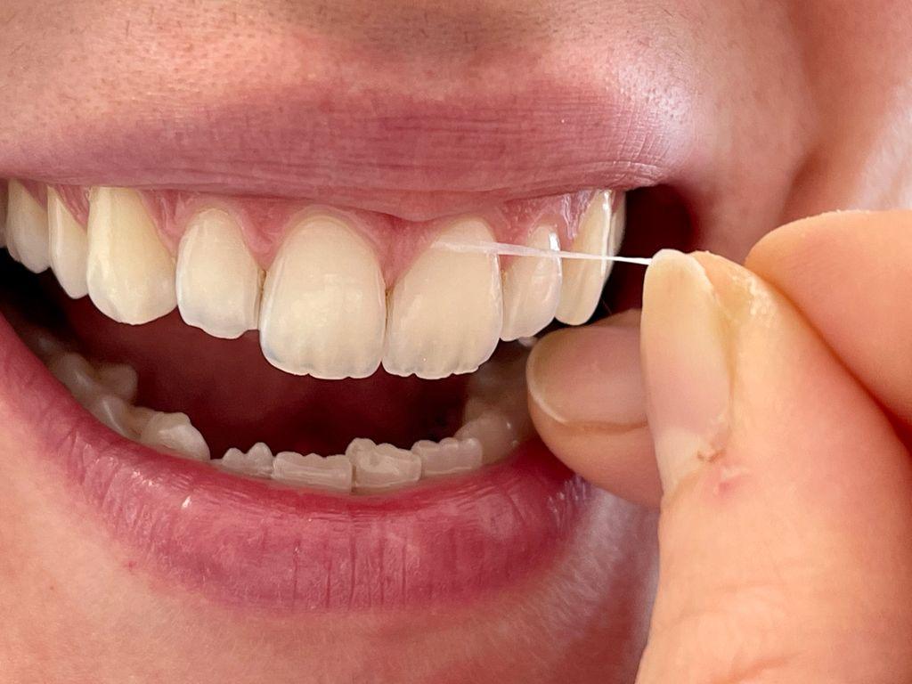 sorriso di ragazza che passa il filo tra i denti