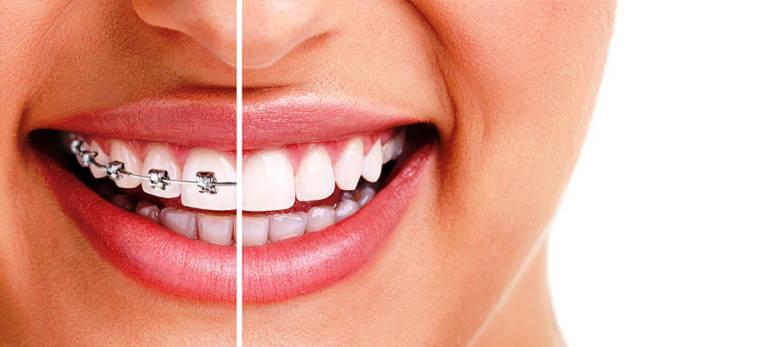 sorriso metà denti con apparecchio ortodontico