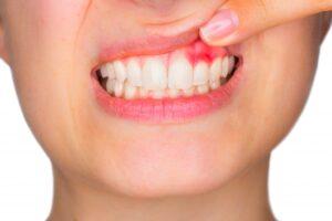 gengiva infiammata parodontologia