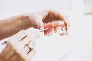 specillo su prova impianto dentale