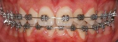 apparecchio ortodontico fisso dentista Lecco