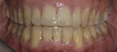 ortodonzia Lecco: placca di contenzione trasparente