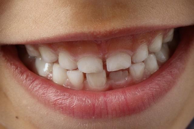 igiene dentale professionale per bambini