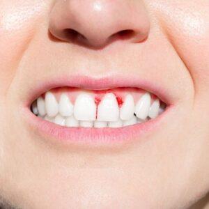 paziente con gengive gonfie e sanguinanti per parodontite